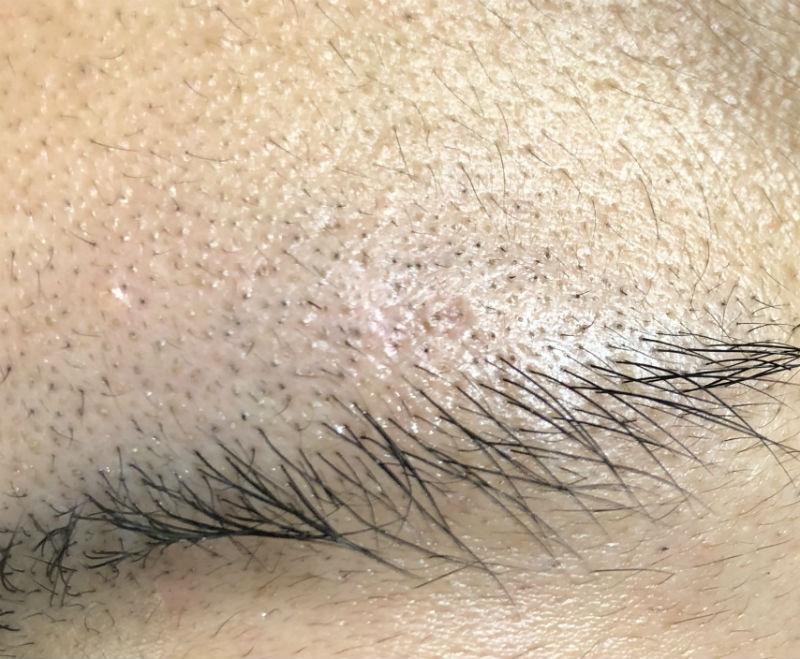 厄介な眉毛ニキビがわずか3日間できれいに治せた